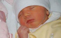 اليرقان عند الأطفال: الأعراض وسبل الوقاية