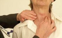 أعراض خمول الغدة الدرقية وطريقة علاجها