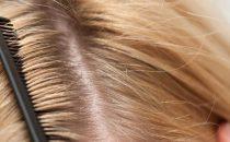 الأسبرين للتخلص من قشرة الشعر