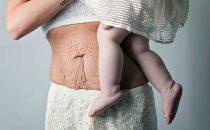 كيف تحاربين ترهلات البطن بعد الولادة؟