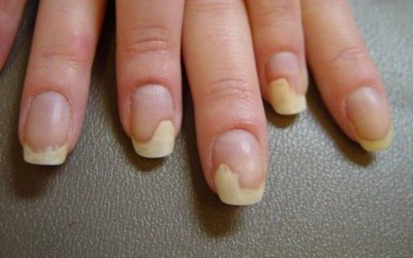 علاجات طبيعية لمشكلة فطريات الأظافر