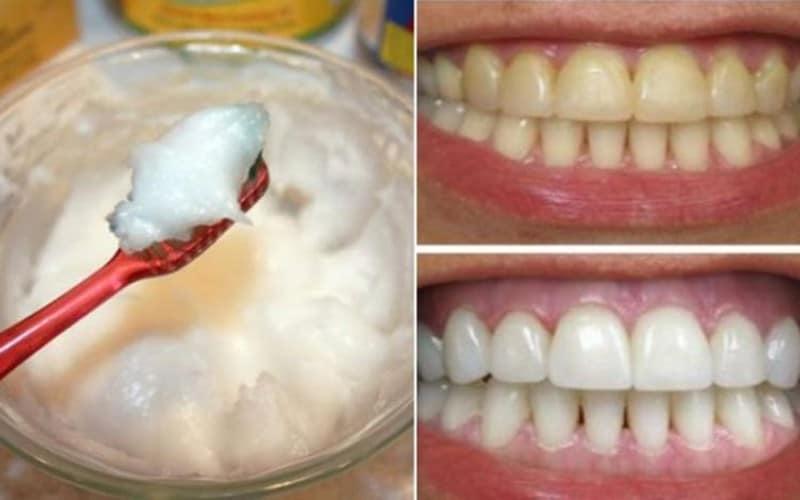 زيت جوز الهند للأسنان
