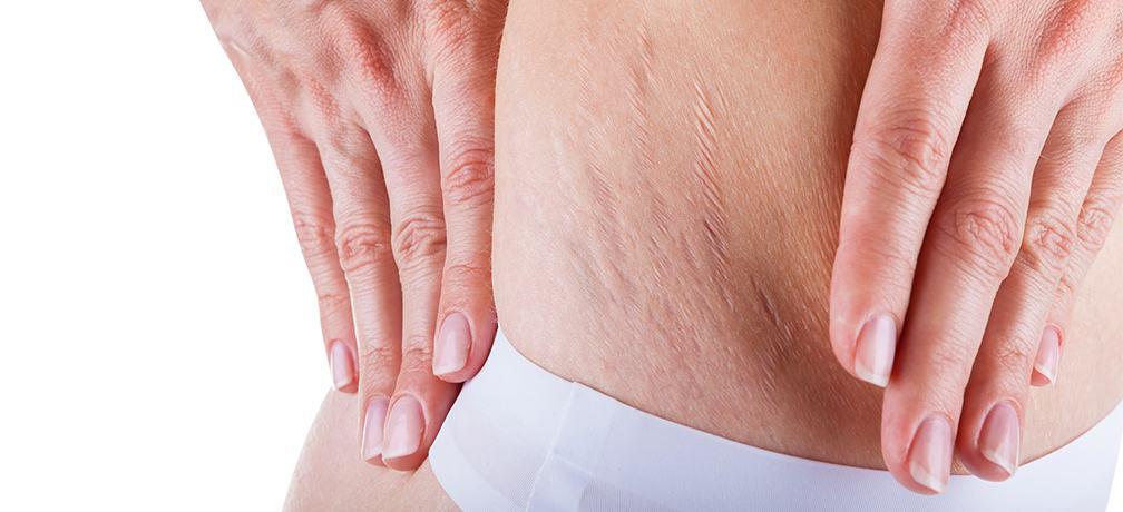 علاجات منزلية للتقليل من علامات التمدد في الجسم