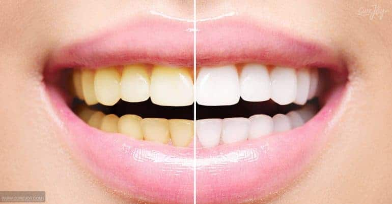 5 مكونات طبيعية فعالة لتبييض الأسنان