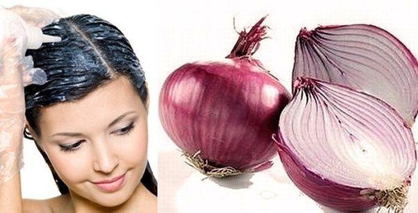 البصل لعلاج تساقط الشعر