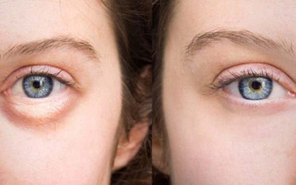 7 وصفات لعلاج انتفاخ العين في أقل من ساعة