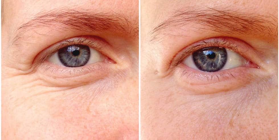 علاج تجاعيد العينين