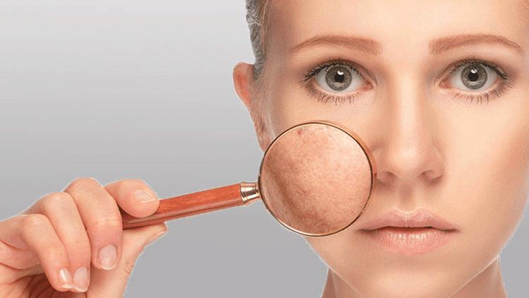 مكونات طبيعية لشد مسام الوجه
