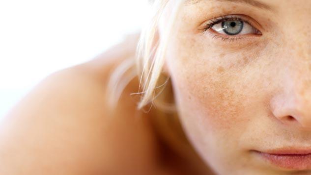 خلطات منزلية سريعة لعلاج البقع الداكنة في الوجه