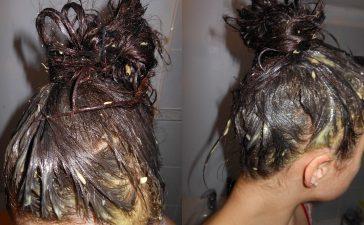 البيض لعلاج تساقط الشعر