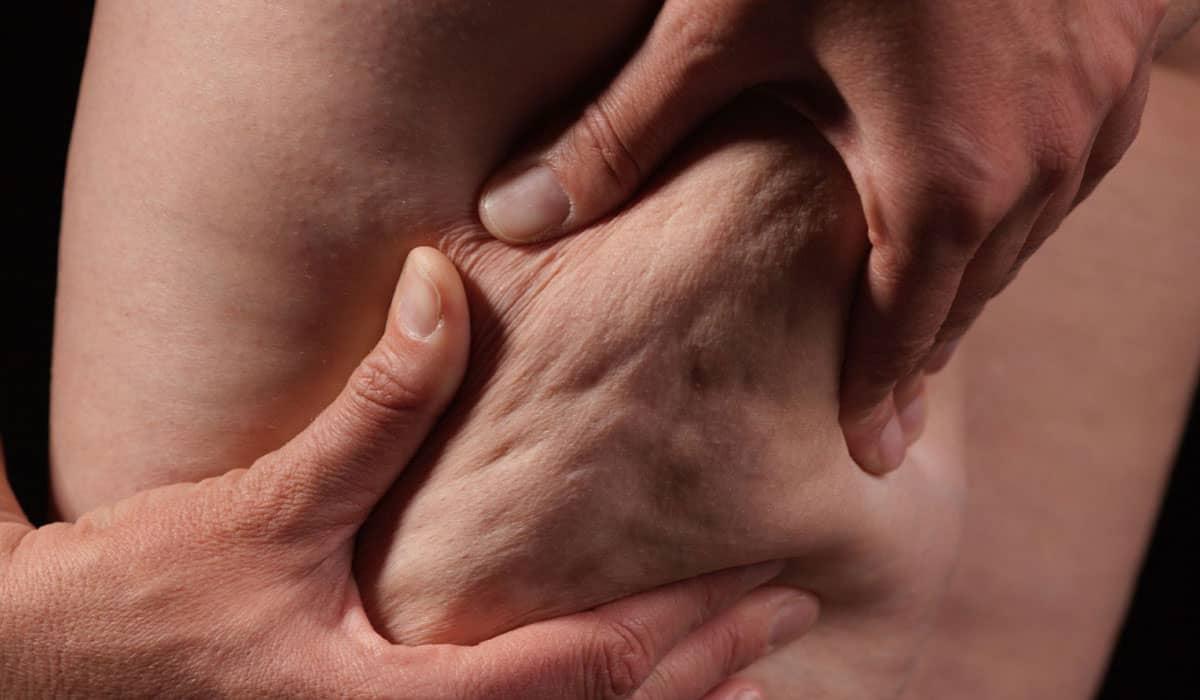 علاج السيوليت