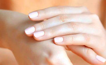 علاج هشاشة الأظافر
