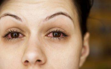 أخطاء ماكياج تضر بصحة العينين