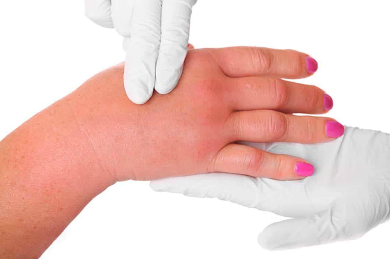 أعراض نقص السوائل في الجسم