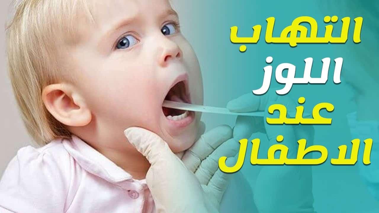 التهاب اللوز عند الأطفال