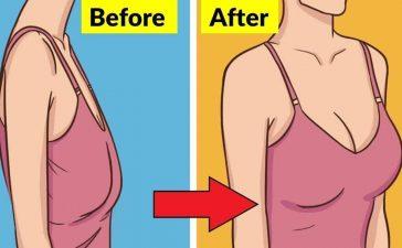 وصفات طبيعية لعلاج ترهل الثدي