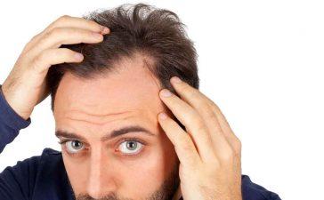 زراعة الشعر في دبي