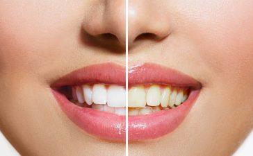 استبدلي علاجات تبييض الأسنان