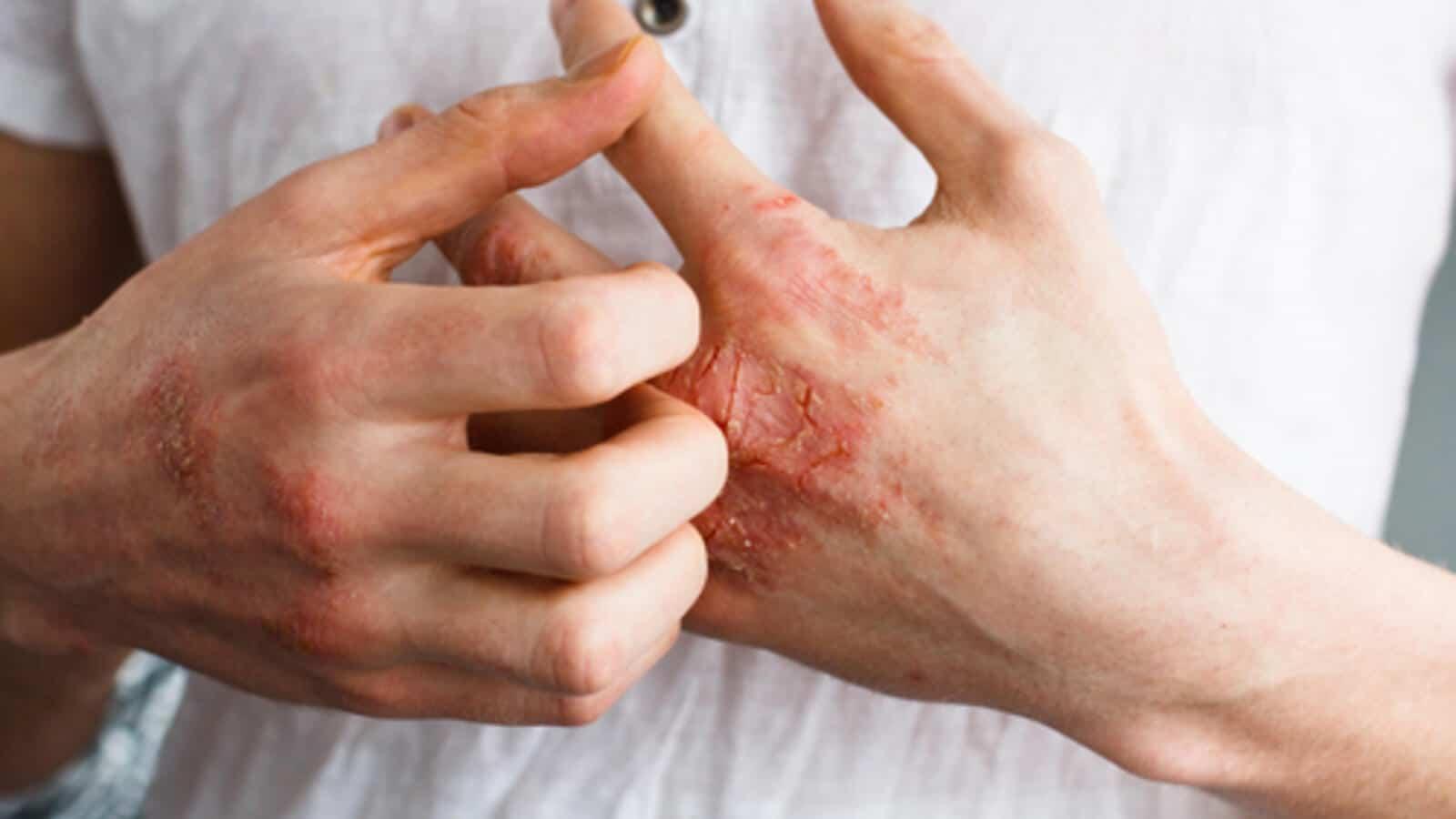 علاجات منزلية طبيعية للتخفيف من الإكزيما