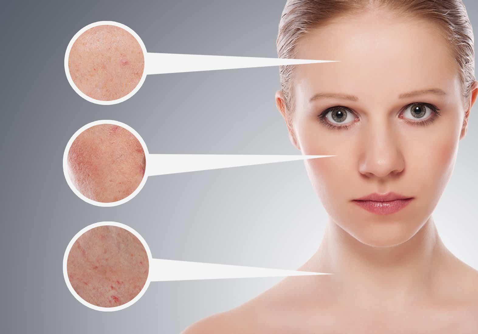 اضطرابات الجلد الشائعة