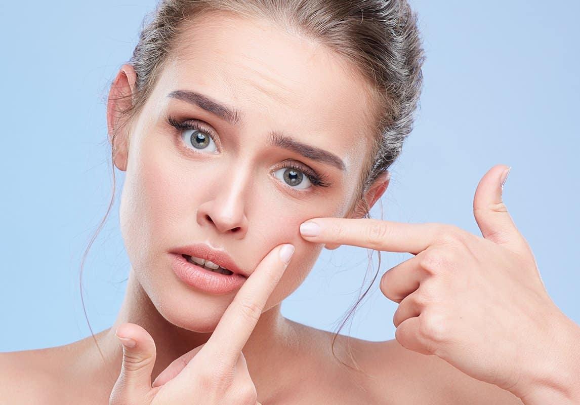 وصفات الثوم للتخلص من بثور الوجه