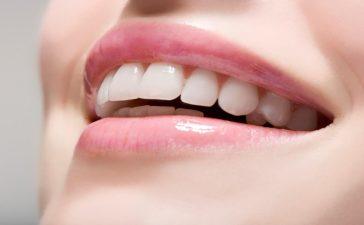جربي هذه المكونات للحصول على أسنان ناصعة
