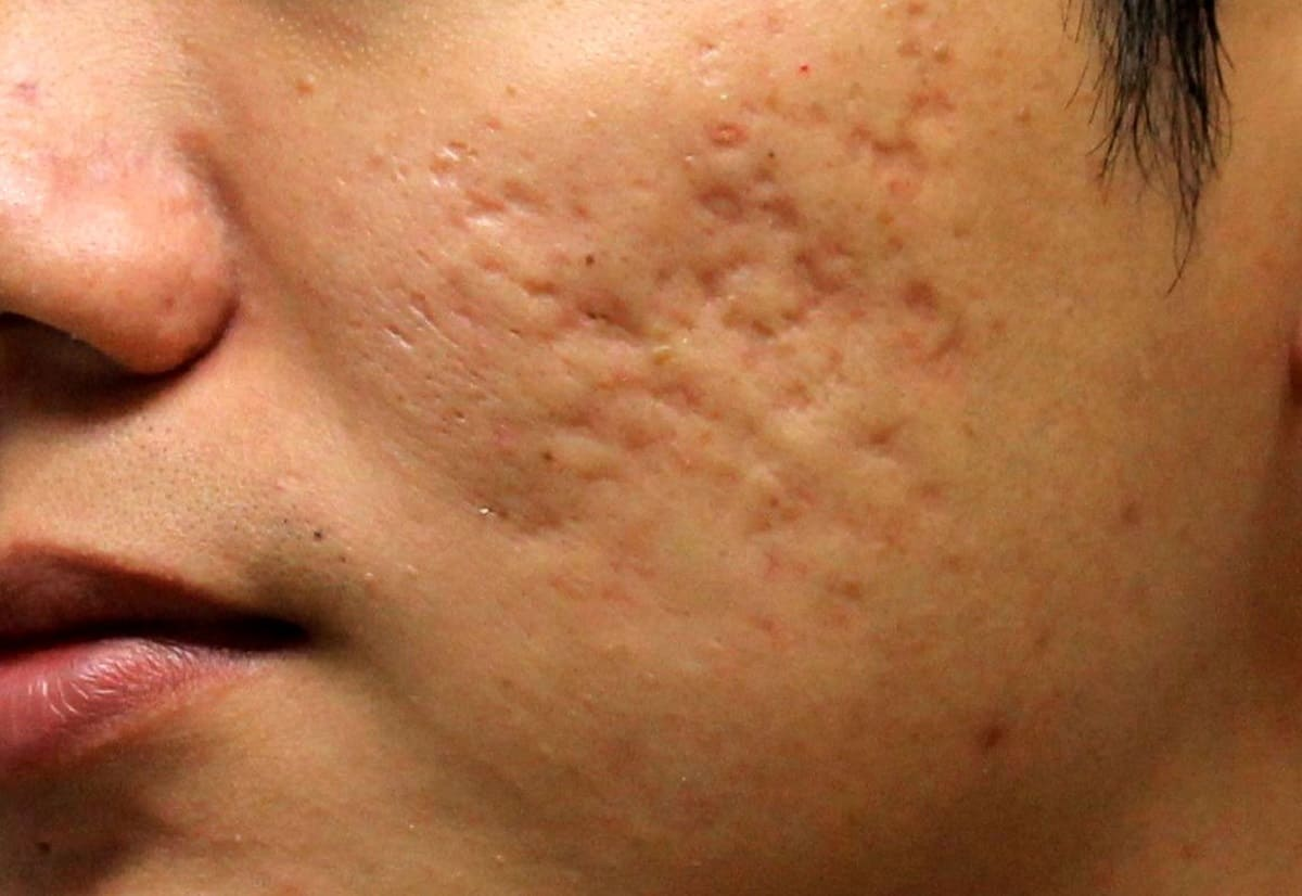 علاجات طبيعية لمشكلة حفر الوجه
