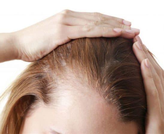 إليك أفضل الطرق لتنشيط بصيلات الشعر