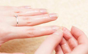 تقصف الأظافر وعلاجها في 3 خطوات