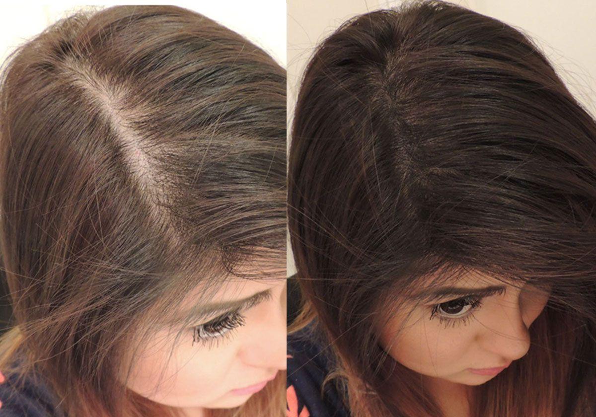 فراغات الشعر
