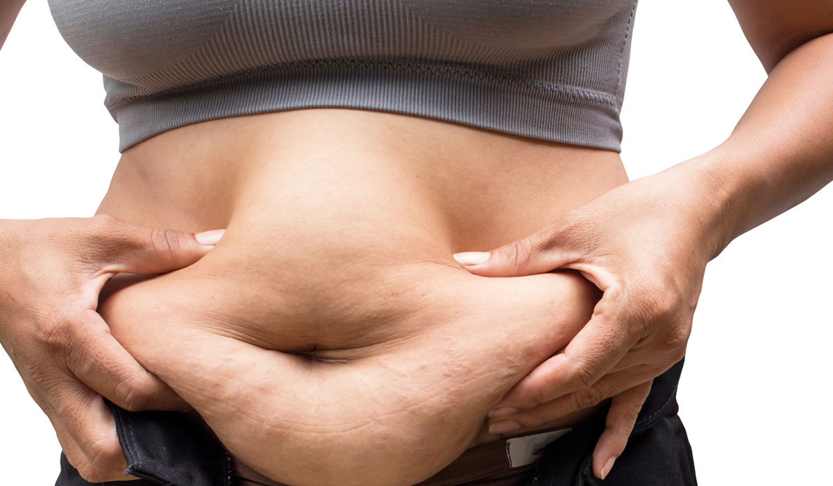 4 أسباب لبروز الكرش على غرار الدهون