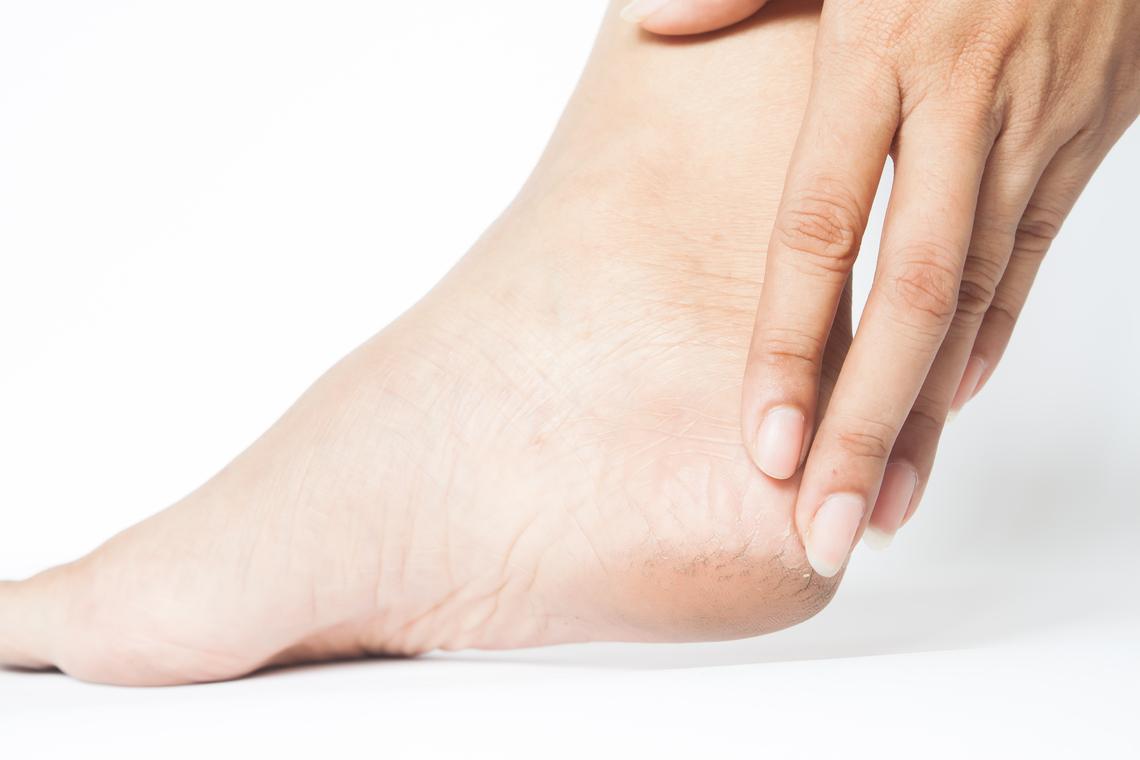 جفاف القدمين