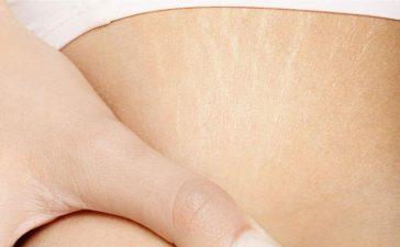 ترهلات الجلد