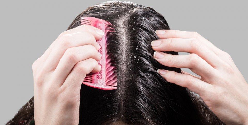 الطريقة الصحيحة لعلاج قشرة الشعر بالخل