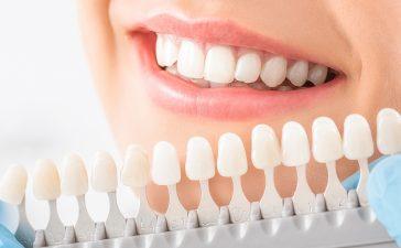 لصقات تبييض الأسنان