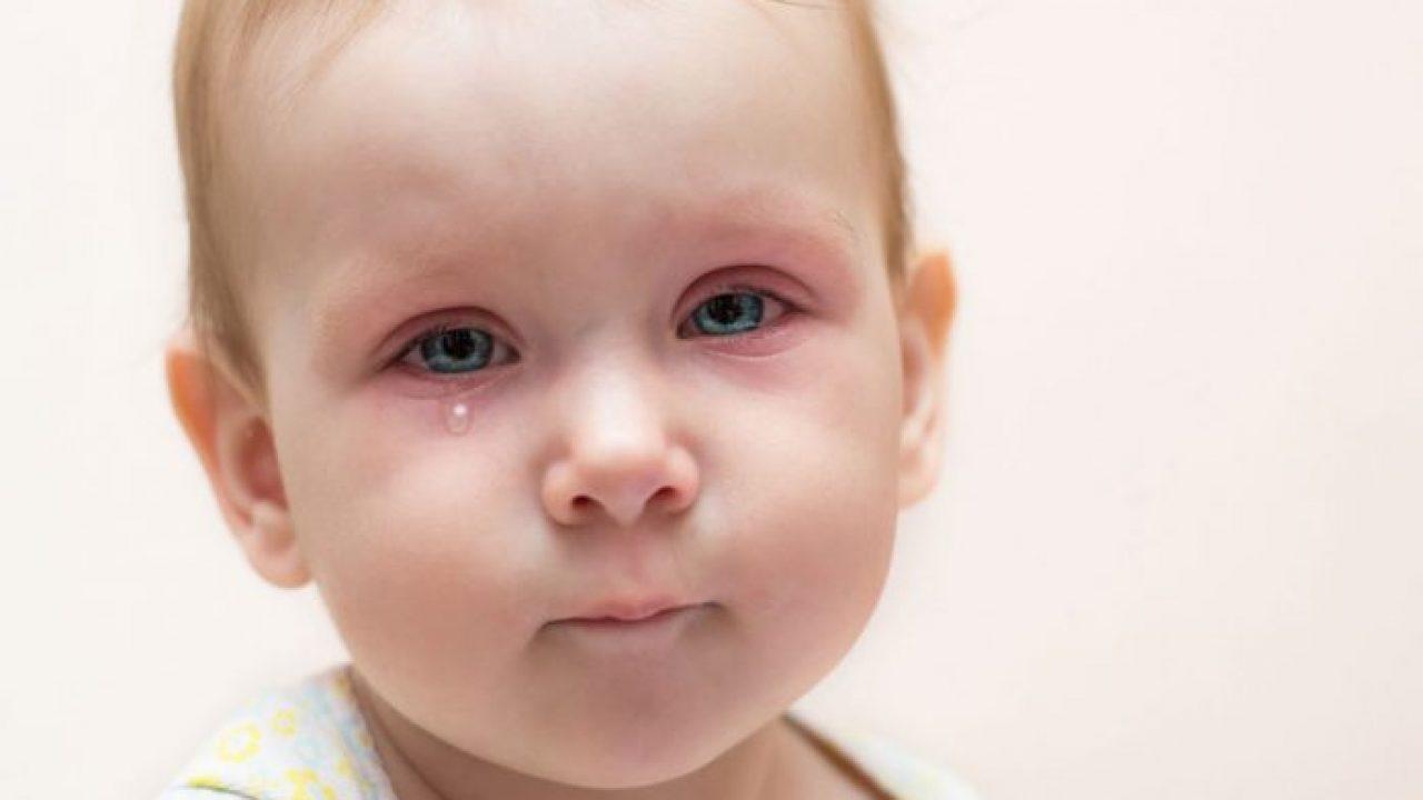 التهابات العيون عند الأطفال