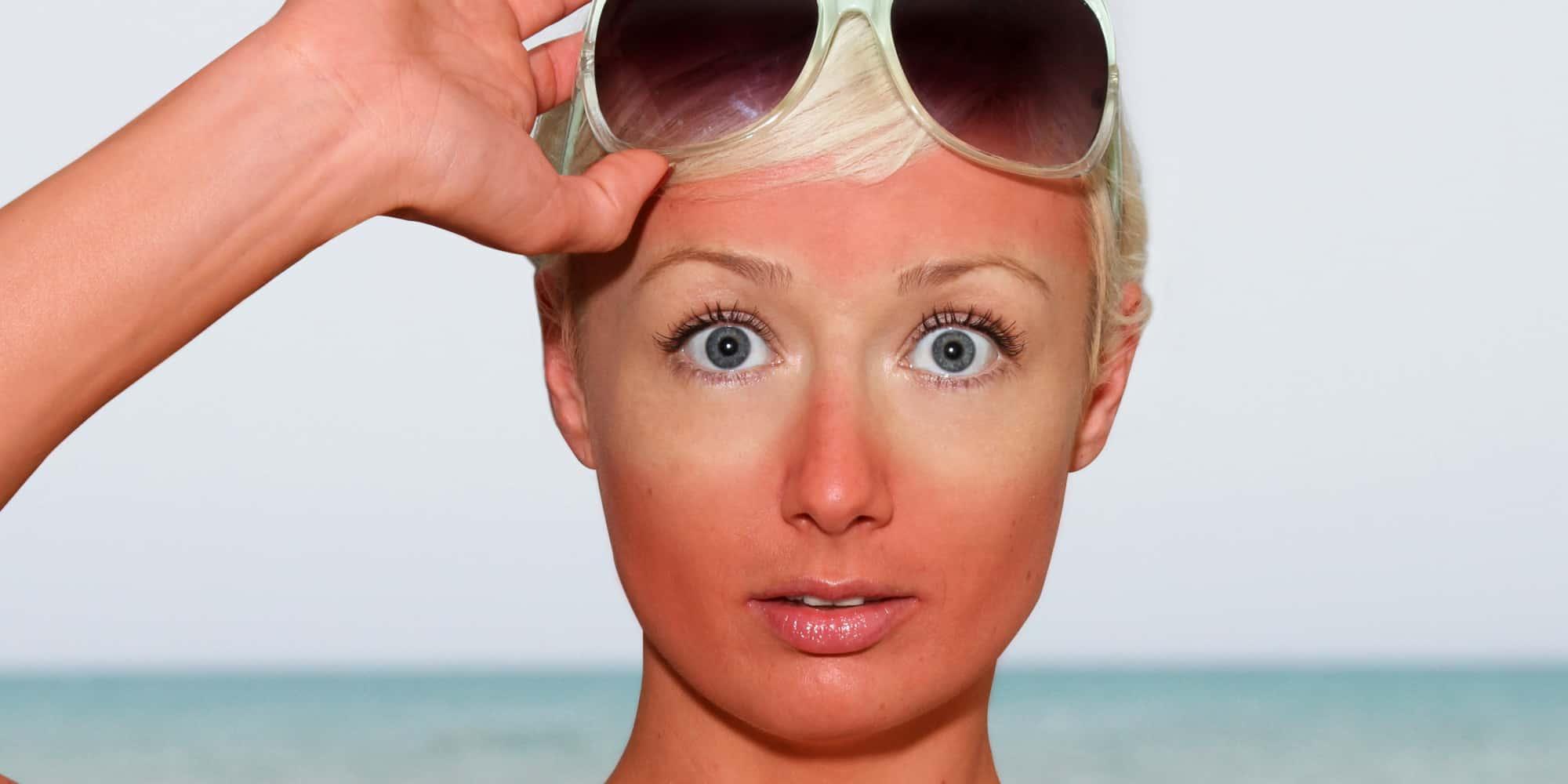 3 مشاكل جلدية تهدد بشرتك في فصل الصيف.